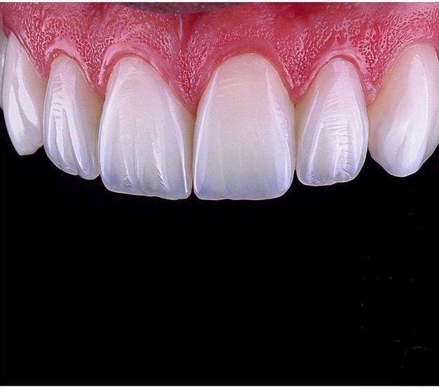 Установка Виниров в современной клинике MK Dental