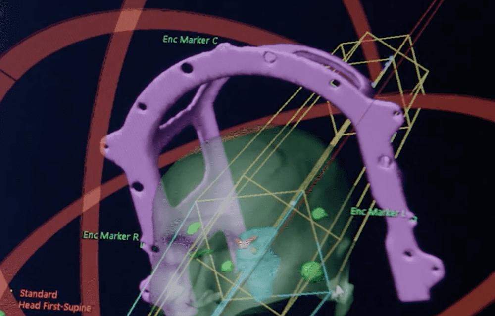 Стереотаксическая радиохирургия Polymedex