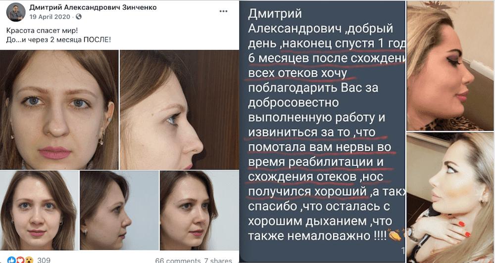 Отзывы пациентов ринопластика Киев Зинченко