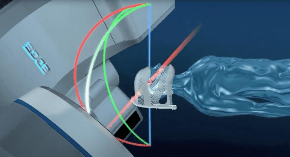EDGE - новые методы радиохирургии