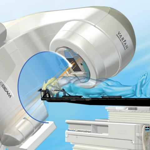 Современная радио-хирургия EDGE  в онкологии