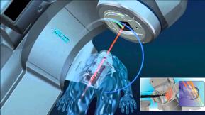 Мощность и точность радиохирургии EDGE